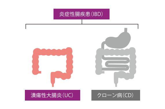 大腸 潰瘍 炎 症状 性